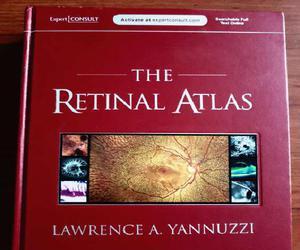 Atlas de retina de yanuzzi en zapopan