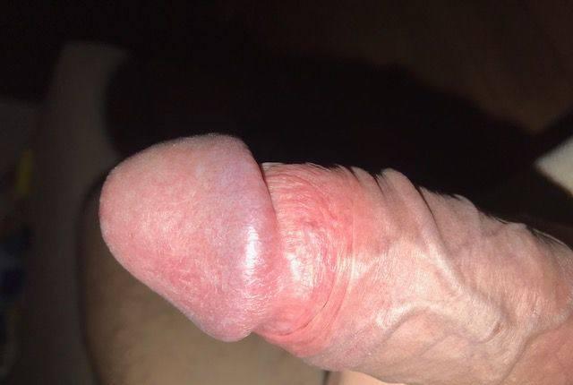 1cita de sexo = €$£¥¢ apoyo
