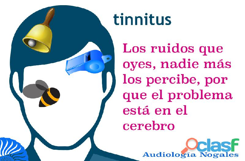 Tinnitus, zumbidos