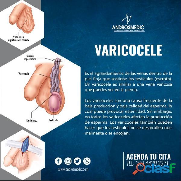 ¿Qué es el Varicocele?