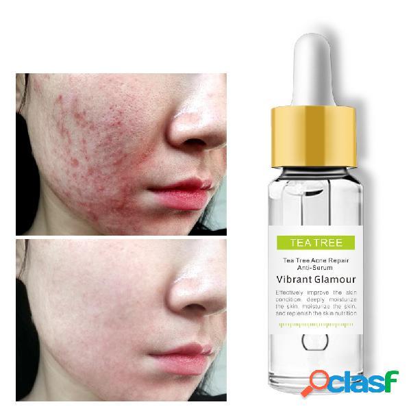 Árbol de té eliminar el acné esencia retractilar los poros reparar las marcas del acné espinillas esencias cuidado de la cara 15 ml