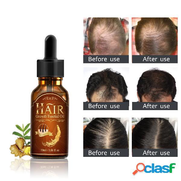 Cabello líquido de crecimiento cabello cuidado esencia nutritiva esencia de crecimiento