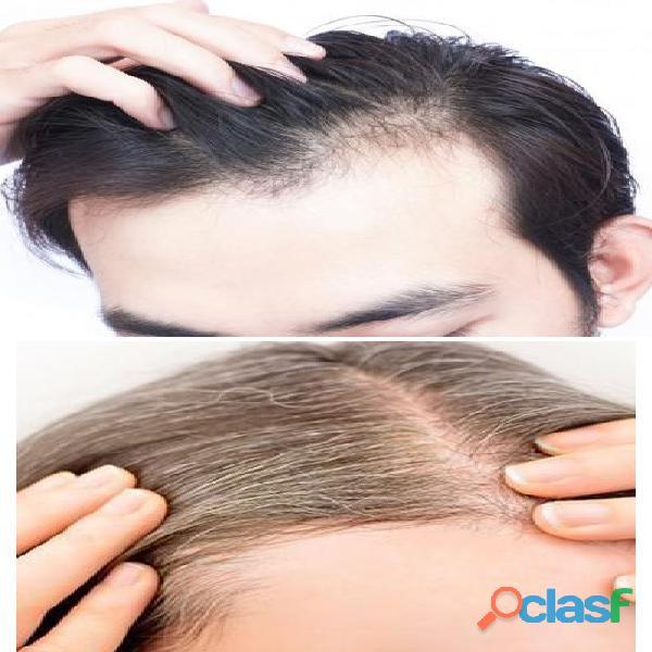 Detén la caída de cabello fácil y rápido!!!